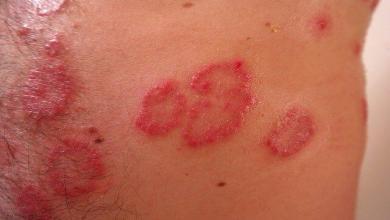 Photo of Dermatite: sintomi e tipologie più comuni