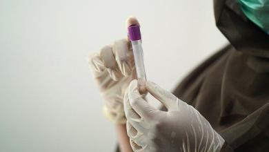 Photo of Oltre 50 tipi di tumore possono essere riconosciuti con l'analisi del sangue