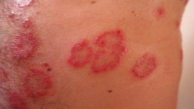 Photo of Dermatite allergica da contatto: cause, sintomi e complicazioni